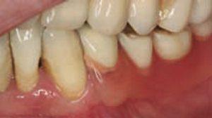 Valplast Denture - Rayner Dental Practice, Bradford, West