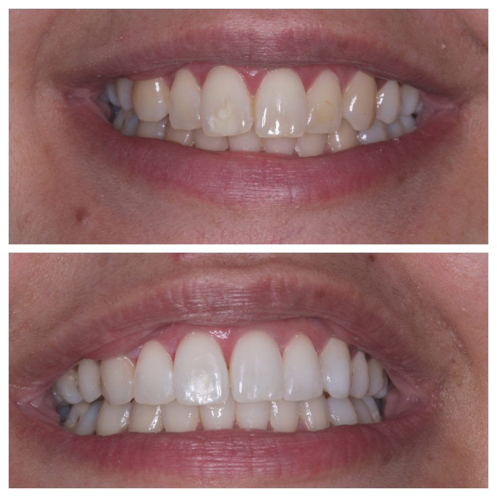 Quick Straight Teeth and whitewash whitening
