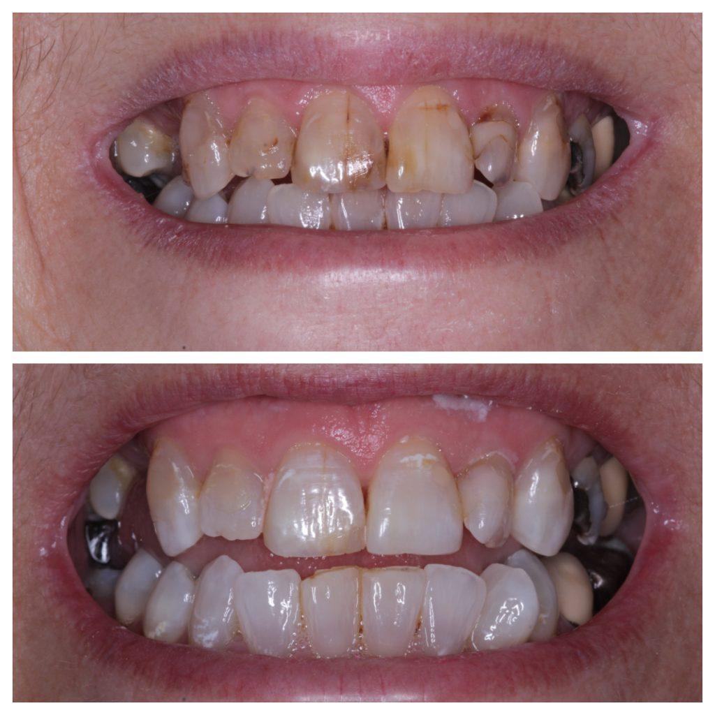 Whitewash whitening and composite bonding