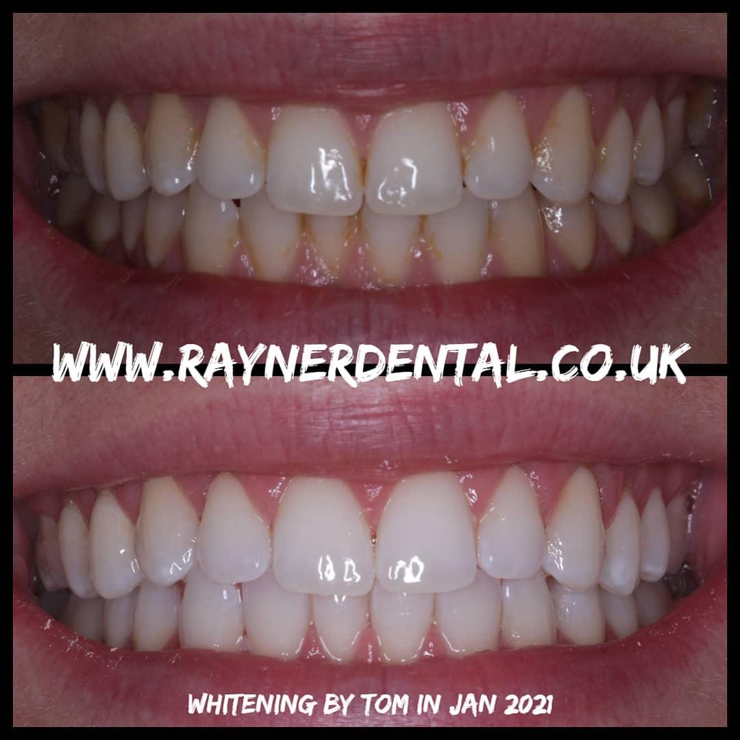 teeth whitening bradford