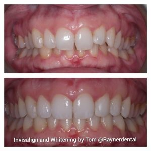 Invisalign and Whitening by Tom