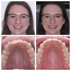 Invisalign by Will