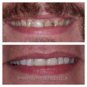 Whitening and Crowns by Tom